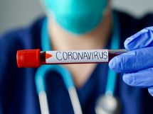 24 घंटे में 573 कोरोना पॉजिटिव मरीज मिले, 11 संक्रमितों ने दम तोड़ा, लगातार चौथे दिन कम हुई एक्टिव मरीजों की संख्या|जालंधर,Jalandhar - Dainik Bhaskar