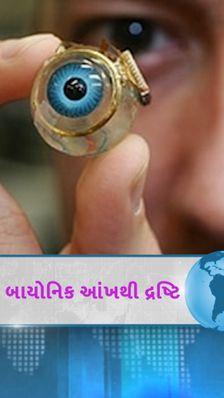 દુનિયાની પ્રથમ બાયોનિક આંખ જે લોકોનો અંધાપો દૂર કરશે, મગજમાં લગાવવાની તૈયારી