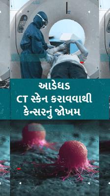 CT સ્કેનથી કેન્સરનું જોખમ, કોરોનાના દર્દીએ આ ટેસ્ટ ક્યારે કરાવવો જોઈએ?