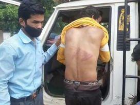 बिछुआ में पति पत्नी के झगड़े की सूचना पर गए थे पुलिसकर्मी, शराब के नशे में कर दी मारपीट, SP से हुई शिकायत छिंदवाड़ा,Chhindwara - Money Bhaskar