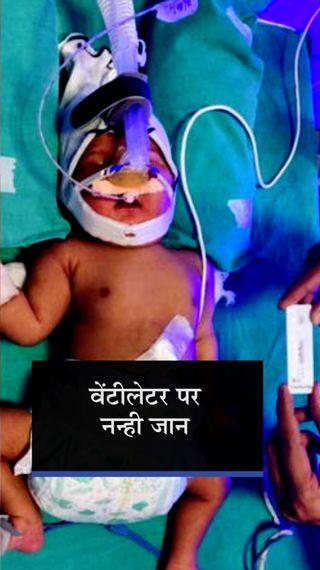 मां की गलती से बच्चे में पहुंचा कोरोना, जन्म के पांचवें दिन संक्रमण का पता चला; रेमडेसिविर इंजेक्शन भी लगाना पड़ा - गुजरात - Dainik Bhaskar