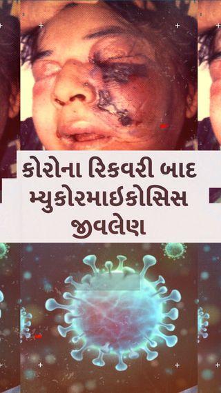 નાક-જડબાંનાં હાડકાંને ઉધઈની જેમ કોરી ખાય છે આ રોગ, ગુજરાતમાં ઘણા કોરોના સંક્રમિતોની આંખો છીનવી, જાણો આ બીમારી વિશે A TO Z - ઈન્ડિયા - Divya Bhaskar