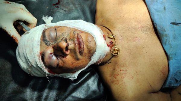 सिर में गोली लगने से दीपू चौधरी की मौत हो गई।