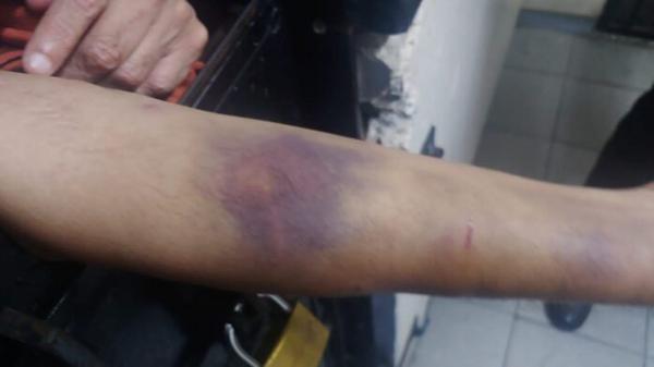 हाथ पर चोट के निशान दिखाता मेहुल चौकसी।