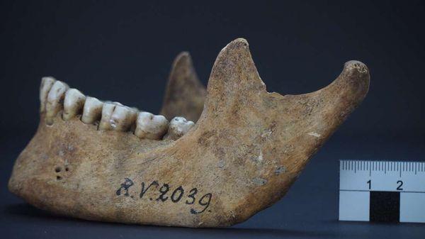 दांतों की जांच से सामने आया है कि शिकारी की मौत ब्लड इंफेक्शन से हुई थी।