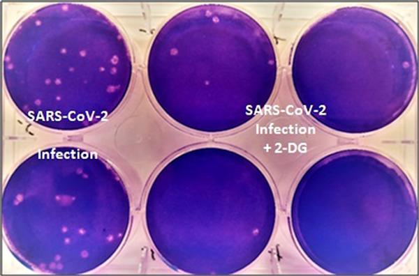 2-DG दवा लेने वाले मरीजों में धीरे-धीरे इस तरह से संक्रमण कम होते गए।