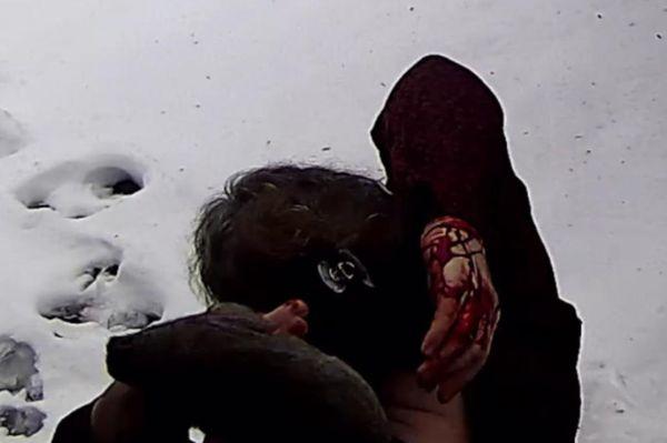 ન્યૂયોર્ક સ્થિત ક્વીન્સ કાઉન્ટીમાં રેગો પાર્કમાં ખિસકોલીએ આતંક મચાવી દીધો છે. સામાન્ય રીતે ખિસકોલીને એક રમતિયાળ અને ભીરૂ પ્રાણી માનવામાં આવે છે પણ રેગો પાર્કમાં રહેતી ખિસકોલીની જાણે 'સટકલી હૈ'. અહીંની રહેવાસી એક મહિલા મિશેલિન ફ્રેડરીક ખિસકોલીના હુમલાનો ભોગ બની. કોઈ કારણસર ગુસ્સે ભરાયેલી ખિસકોલીએ તેના પર કૂદીને ડોક અને હાથની આંગળી પર સાત-આઠ બચકાં ભરી લીધા અને તેને લોહીલુહાણ કરી નાખી.