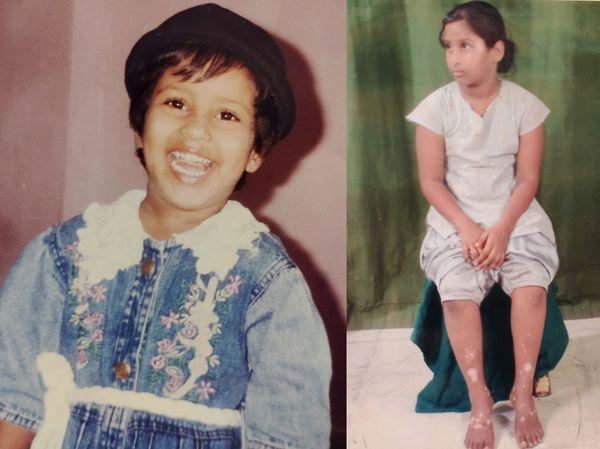 ल्यूकोडर्मा के कारण बचपन में शालिनी के शरीर पर सफेद दाग हो गए थे।