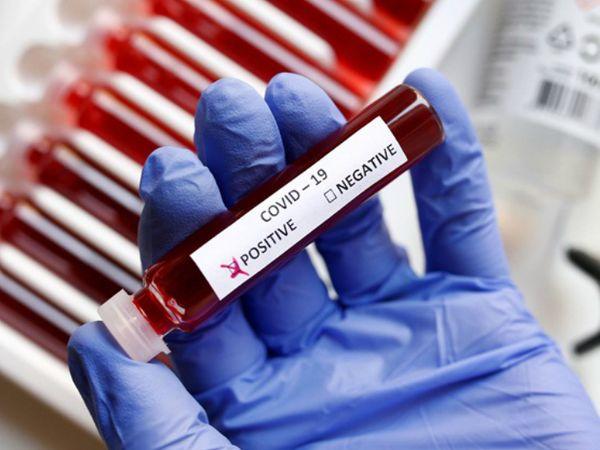 किट नए कोरोनावायरस को जांच के दौरान पकड़ने में मदद करेगी। फोटो प्रतीकात्मक - Dainik Bhaskar