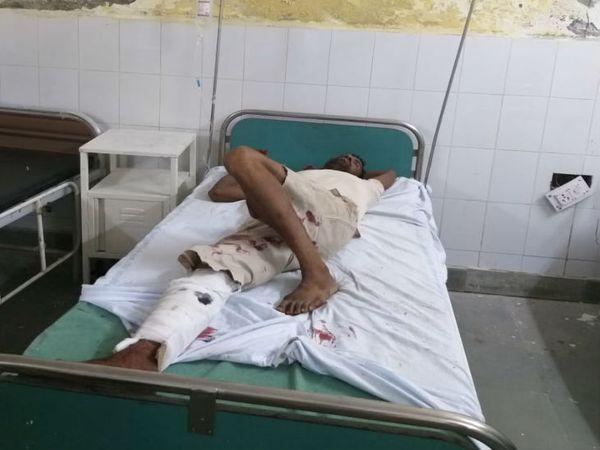 अलीगढ़ में पुलिस के साथ मुठभेड़ में घायल हुआ बदमाश। उसे अस्पताल में भर्ती कराया गया है। - Dainik Bhaskar