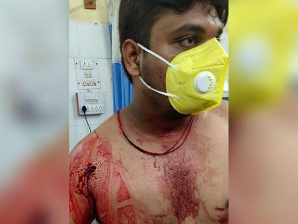 बदमाशों ने चाकू निकाल लिया और गोल्डी के चेहरे और पेट पर वार कर दिया। बीच-बचाव करने आए प्रतीक को भी चाकू मारा। प्रतीक गंभीर रूप से घायल हो गया।