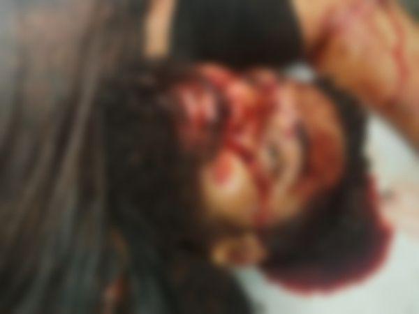 राजनांदगांव में बुधवार देर रात 7 बदमाशों ने मिलकर एक हिस्ट्रीशीटर की हत्या कर दी। हिस्ट्रीशीटर के चेहरे और पेट पर मौत होने तक वार किया गया। इस दौरान उसके साथी पर भी हमला किया। उसे गंभीर हालत में अस्पताल में भर्ती कराया गया है। - Dainik Bhaskar