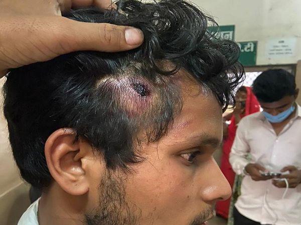 युवक के सिर पर भी चोट आई है।
