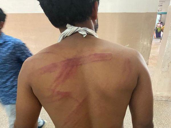 युवक के शरीर पर कई जगह मारपीट के निशान हैं। - Dainik Bhaskar