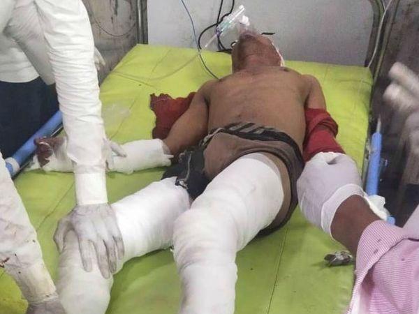 घायल मजदूर को अस्पताल में भर्ती कराया गया।