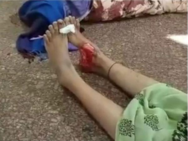 मृतका पैर में चमड़ी के कुतरने का निशान - Dainik Bhaskar
