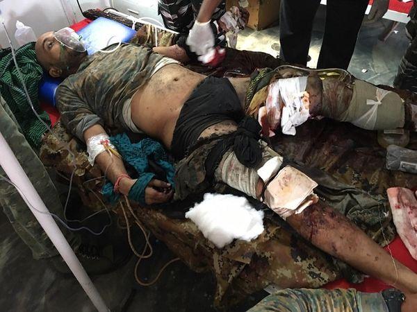 विस्फोट की वजह से विकास के शरीर पर कई जख्म आए, डॉक्टरों ने उन्हें बचाने का प्रयास किया मगर कामयाबी नहीं मिली।
