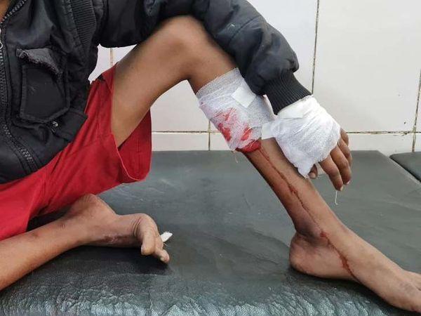 जमशेदपुर में इलाज के लिए छात्र को MGM लाया गया। - Dainik Bhaskar