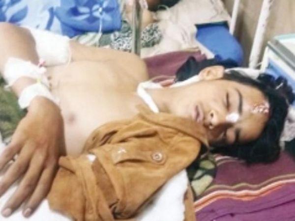 गंभीर दानिश काे एमवाय अस्पताल में भर्ती करवाया गया है। - Dainik Bhaskar