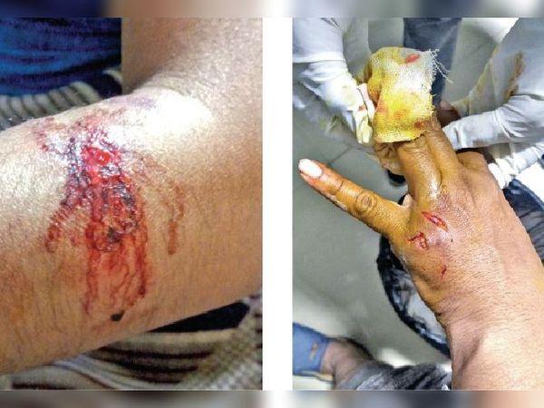 राऊ में मादा श्वान ने ज्यादातर लोगों के हाथ में काटा है। इससे इलाके में दहशत का माहौल है। - Dainik Bhaskar