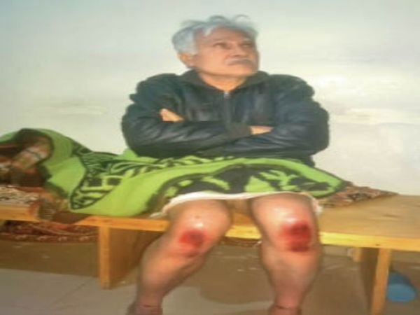 हाइवे पर मार्निंग वॉक कर रहे थे डॉ. राधाकृष्ण गुरबख्शानी, तभी बदमाशों ने उनका अपहरण कर लिया। - Dainik Bhaskar