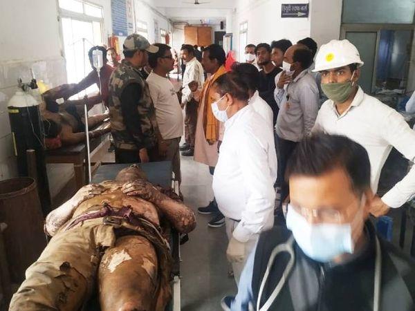 मजदूरों को झुलसने के बाद अस्पताल में भर्ती कराया गया है। - Dainik Bhaskar