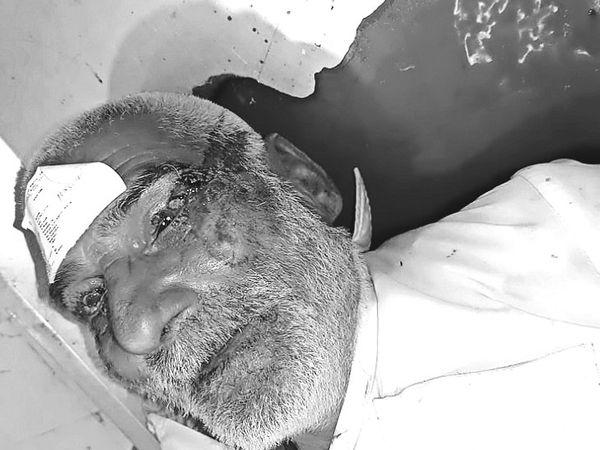 चूहों ने शव को चेहरे से लेकर पैर तक बुरी तरह कुतर दिया था। - Dainik Bhaskar