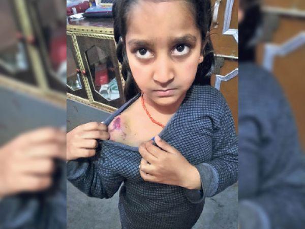 हल्काए कुत्ते के हमले से घायल 8 वर्षीय नीतिका। - Dainik Bhaskar