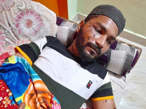 ओला कैब ड्राइवर राशिद पर हमला करने वाले आरोपियों में लड़की सबसे ज्यादा 12वीं तक पढ़ी निकली। - Dainik Bhaskar