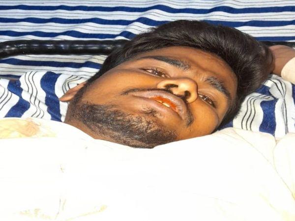 बदमाश ने सीने पर फायर करना चाहा रोहित ने हाथ पकड़ लिया जिसकी वजह से जांघ में गोली लगी। - Dainik Bhaskar