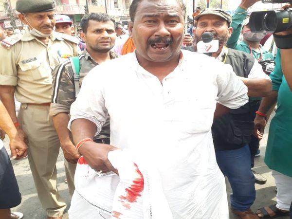 पुलिस की लाठी से घायल राजद कार्यकर्ता।