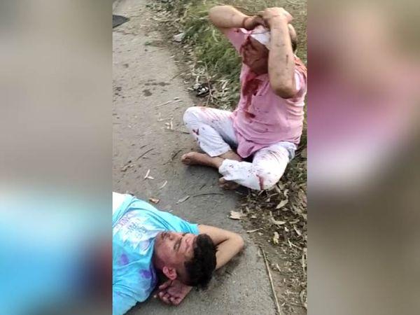 हादसे में घायल हुए रोडवेज का ड्राइवर मनोज (सिर पकड़कर बैठा हुआ) और एक अन्य।