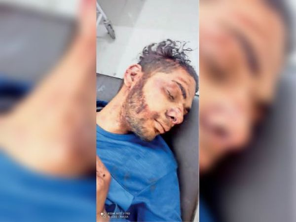 लुधियाना के निजी अस्पताल में उपचाराधीन घायल धीरज कुमार । - Dainik Bhaskar