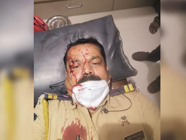 हमले में घायल पुलिसकर्मी को अस्पताल ले जाते हुए। चारों घायल पुलिसकर्मी अस्पताल में भर्ती हैं। इनमें से एक की हालत गंभीर है।