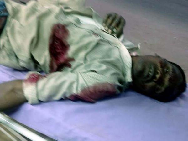 घायलों की स्थिति गंभीर देख डॉक्टर ने चारों को रिम्स रेफर कर दिया है।