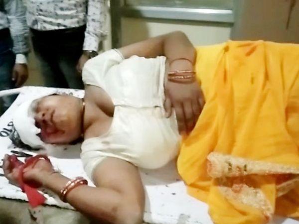 ऊषा ने राऊ बायपास के पास अचानक चलती बस से छलांग लगा दी। उसका एमवाय अस्पताल में इलाज चल रहा है। - Dainik Bhaskar