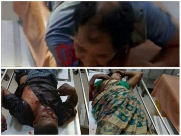 छत्तीसगढ़ के कोरबा में महिला राज मिस्त्री सहित 3 लोगों को उनके ही साथी ने चाकू मार दिया। तीनों की हालत गंभीर है। - Dainik Bhaskar