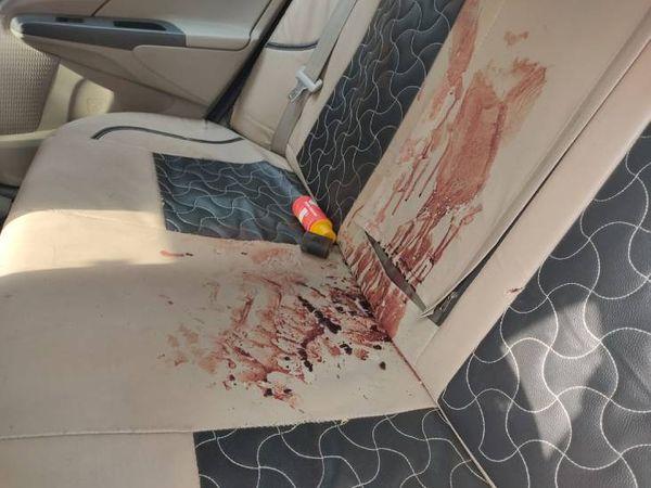 कार की पिछली सीट पर फैला खून।