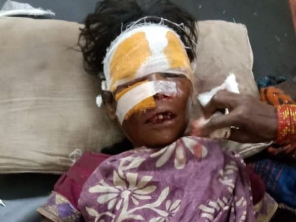 हमले में महिला बुरी तरह घायल हो गई  है। - Dainik Bhaskar