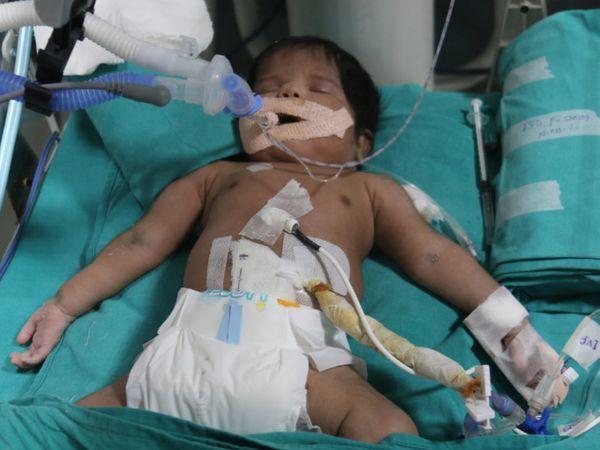 बच्ची 10 दिनों तक वेंटिलेटर पर रही, लेकिन उसे बचाया नहीं जा सका।