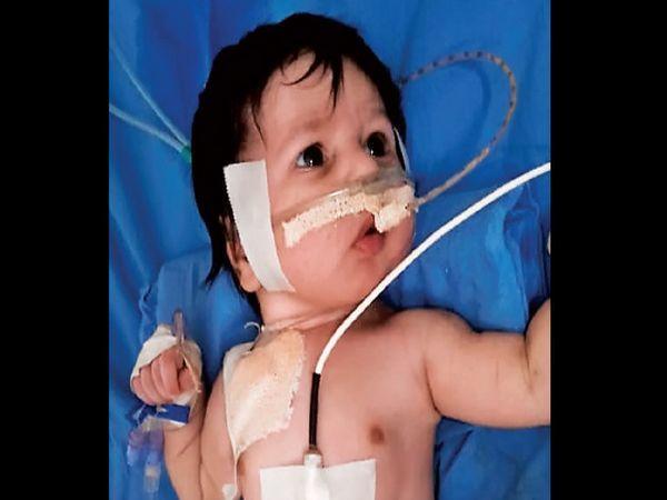 सूरत में ही 30 दिन की ये बच्ची भी ऑक्सीजन पर है। हालांकि, बच्ची की हालत में सुधार है।