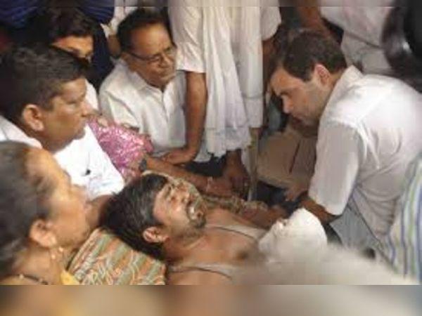 फरीदाबाद में अस्पताल में उपचाराधीन झुलसने से घायल हुए जितेंद्र का हाल जानने पहुंचे कांग्रेस के वरिष्ठ नेता राहुल गांधी। -फाइल फोटो - Dainik Bhaskar