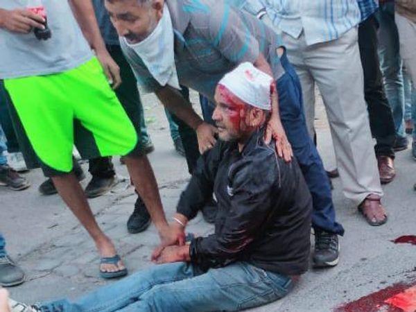 मारपीट में जख्मी हुआ युवक। - Dainik Bhaskar