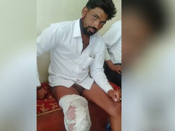 हर्ष फायर से घायल युवक वीरेंद्र बघेल। - Dainik Bhaskar