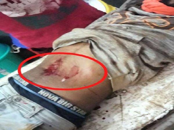 पेट में गोली लगते ही मोनू ने दम तोड़ दिया। - Dainik Bhaskar