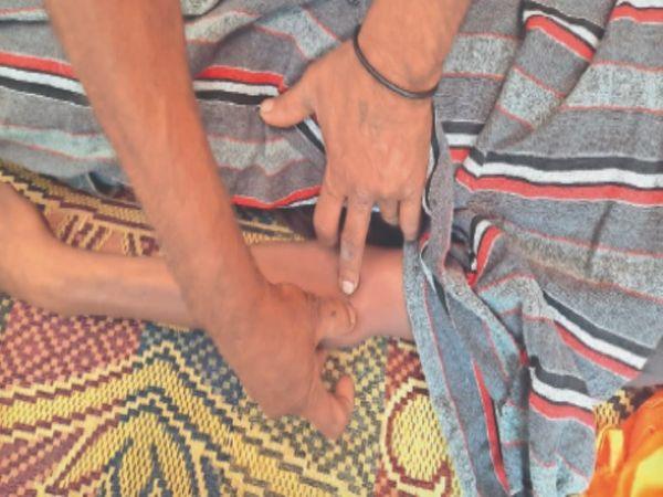 मनप्रीत की बाजू पर लाल सर्कल में इंजेक्शन के निशान दिखाते पिता। - Dainik Bhaskar