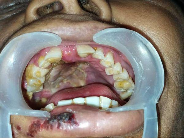 ये तस्वीर भी गुजरात के एक कोरोना संक्रमित की है, जो संक्रमण के बाद फंगल इंफेक्शन का शिकार हो गया।