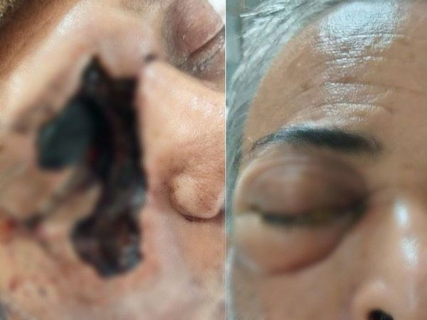 म्यूकोरमाइकोसिस से आंखों की रोशनी या जान भी सकती है। तस्वीरें विचलित करने वाली हैं, इसलिए हम इन्हें स्पष्ट रूप से नहीं दिखा रहे हैं। - Dainik Bhaskar