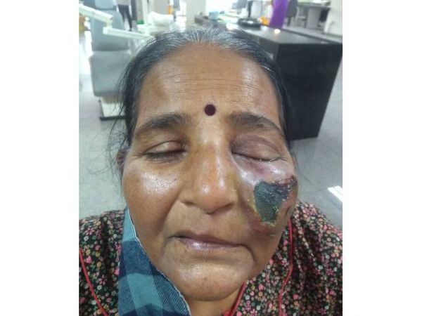 गुजरात के अहमदाबाद में कुछ दिन पहले ये केस सामने आया, जिसमें म्यूकोरमाइकोसिस की वजह से महिला की आंख के करीब फंगल इंफेक्शन हुआ।