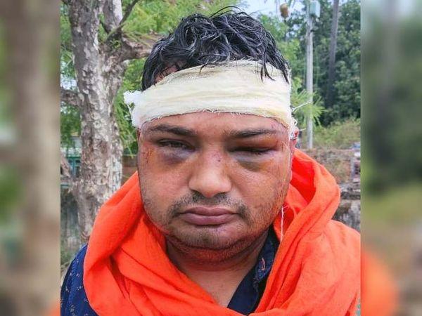 बदमाशों के हमले से जख्मी रंजीत कुमार। - Dainik Bhaskar